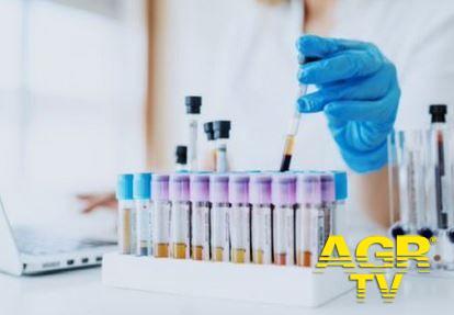 Covid-19, test sierologici fondamentali per screening e valutazione epidemiologica