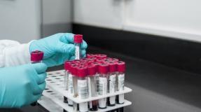 Toscana-Coronavirus, 444 nuovi casi, età media 43 anni, 15 decessi